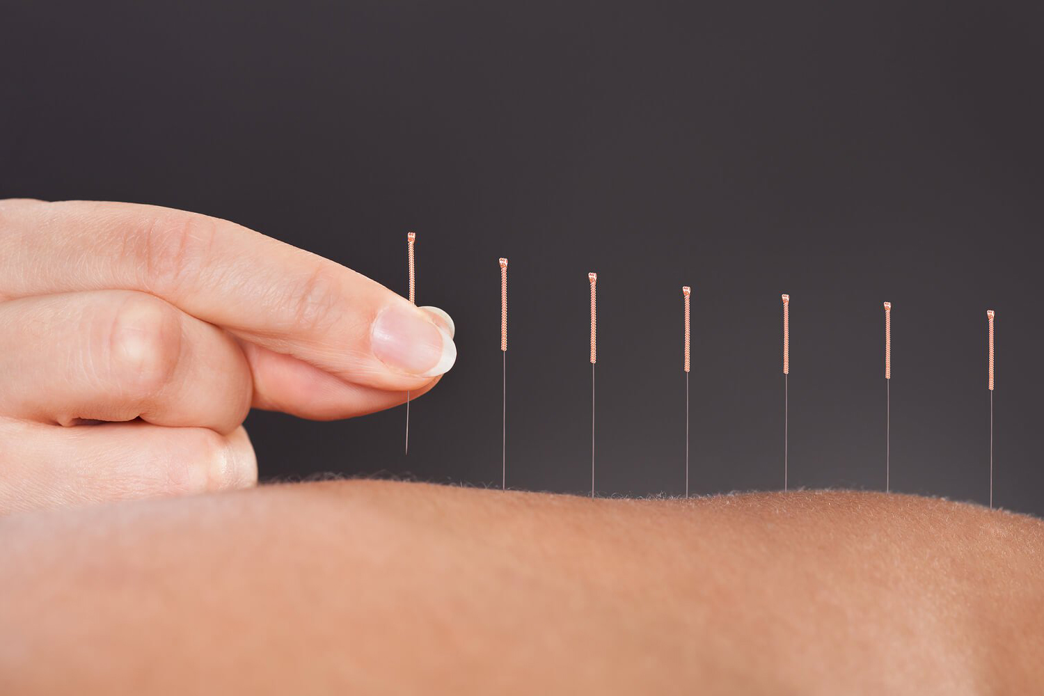 What is Acupuncture, Define Acupuncture, Different Acupuncture Treatments, Local Acupuncture Treatments, Acupuncture Therapy Treatments