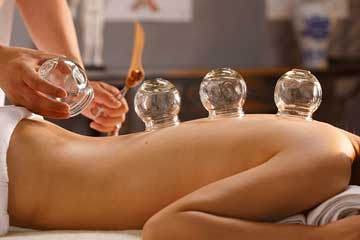 Wet Cupping, Hijama Cupping, Local Cupping Doctor, Massage Cupping Therapy